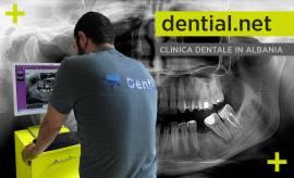 Clinica dentale a Durazzo in Albania con partenze da tutti gli aeroporti italiani