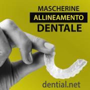 Mascherine dentali trasparenti ed invisibili per correggere i difetti dei denti