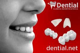 DENTISTA IN ALBANIA - CLINICA ODONTOIATRICA www.dential.net