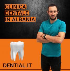 Quanto costa sistemare i denti in Albania?
