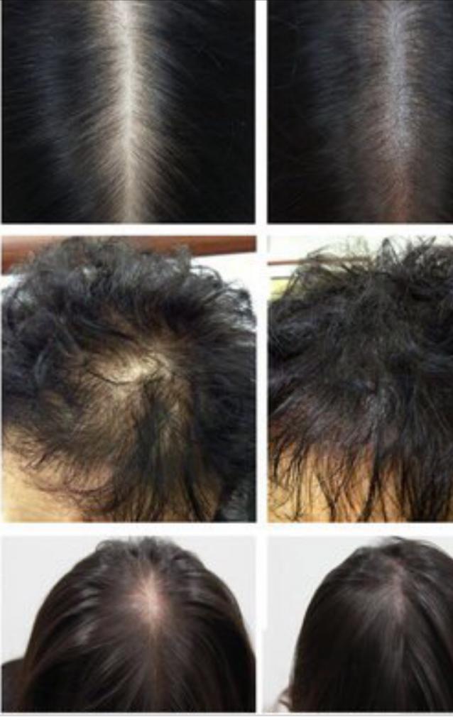 Trattamento estetico dei capelli