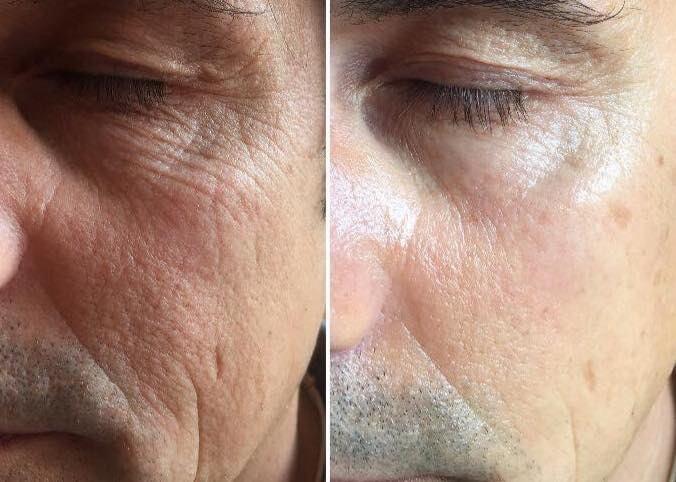 ringiovanimento immediato del volto con ionoforesi estetica