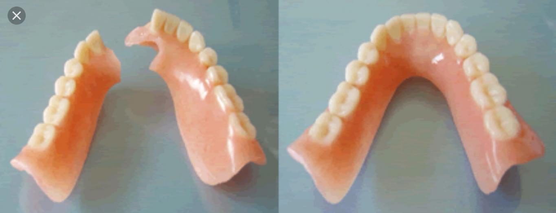 Riparazione protesi dentale immediata aperto agosto bologna